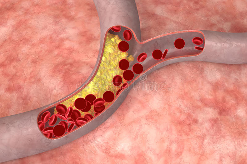 Cholesterin in der Arterie
