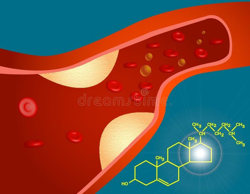 Cholesterol royalty-vrije illustratie