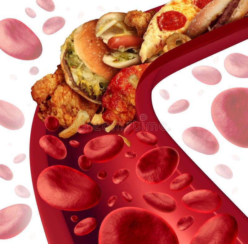 Cholesterol Geblokkeerde Slagader stock illustratie