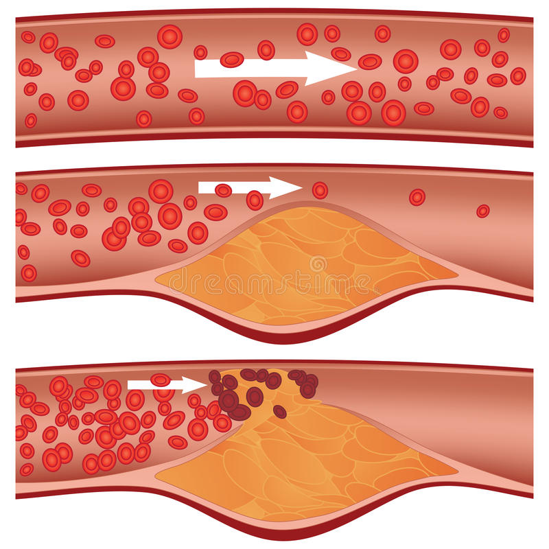 Cholesterol plaque in artery. (atherosclerosis) illustration. Top artery is healthy. Middle & bottom arteries show plaque formation, rupturing, clotting & blood royalty free illustration
