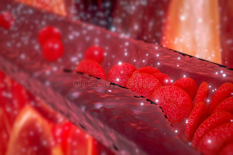 Cholesterol plaque in artery, Blood vessel with flowing blood cells stock images