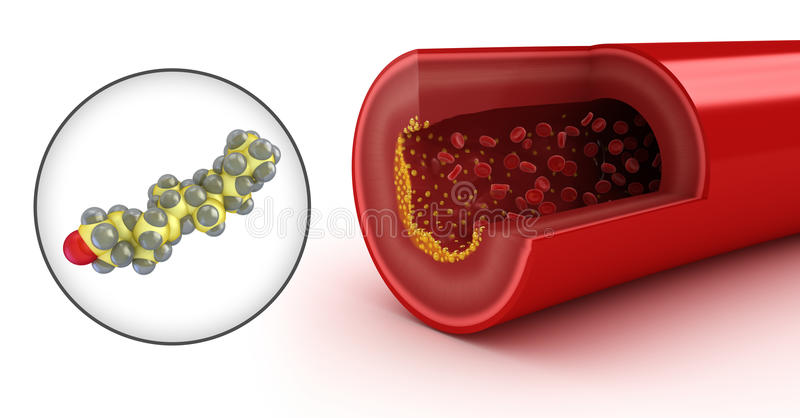 Cholesterol plaque in artery and cholesterol vector illustration