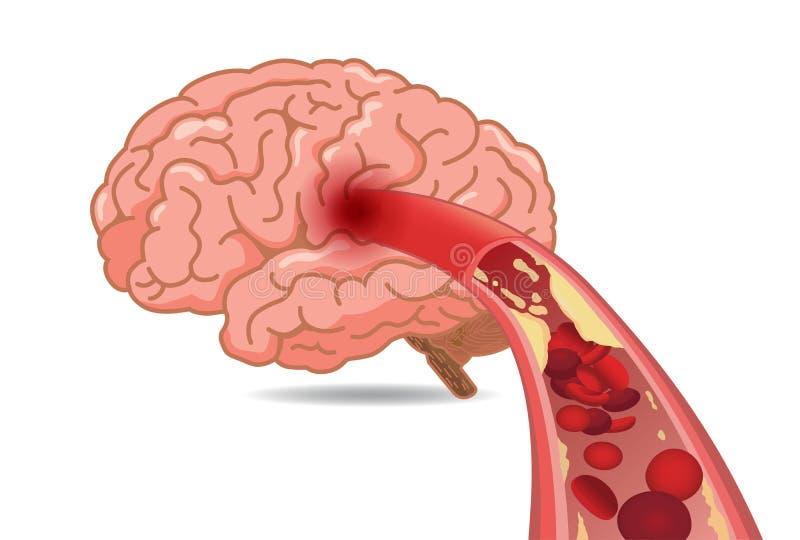 Cholesterol w żyłach robić zwalnia przepływ krwi w mózg ilustracja wektor