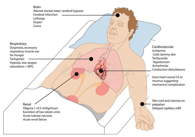 Choque cardiogénico ilustração stock