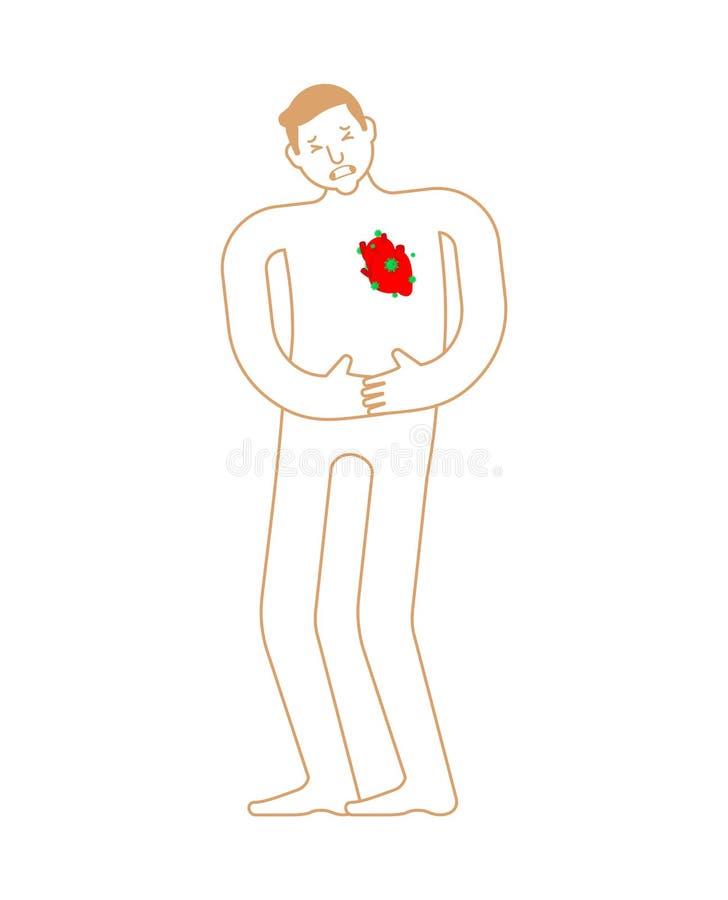 Chora kierowa anatomia ludzka choroba Chory wewnętrzny organ Ac ilustracji