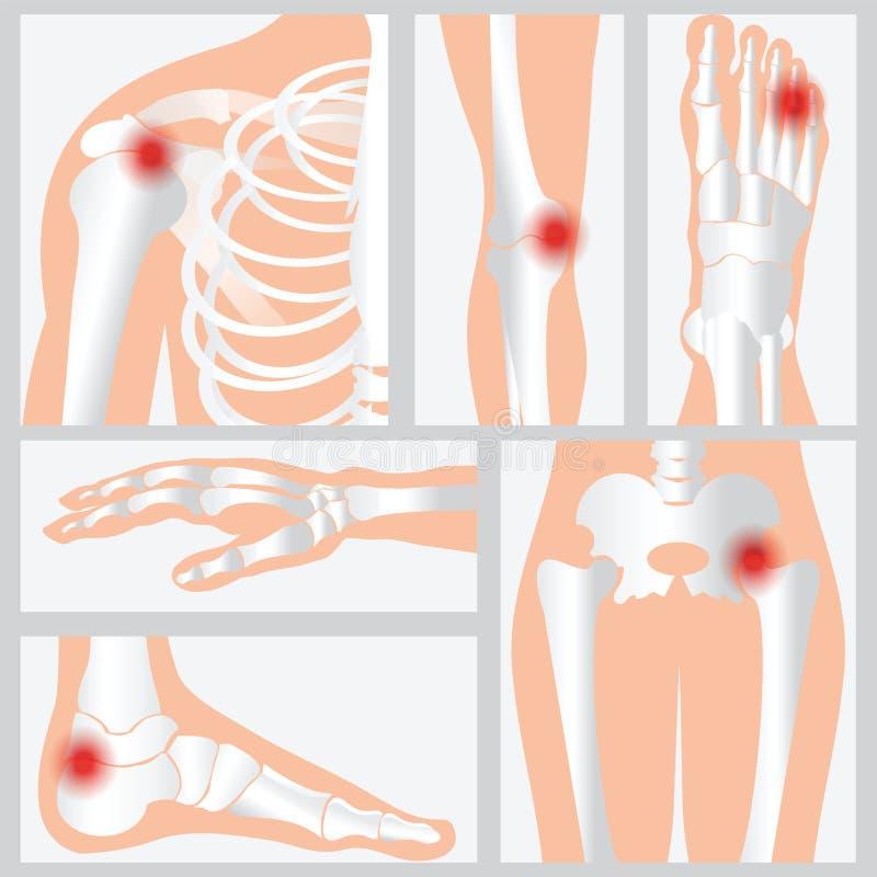 Choroba kości i złącza royalty ilustracja