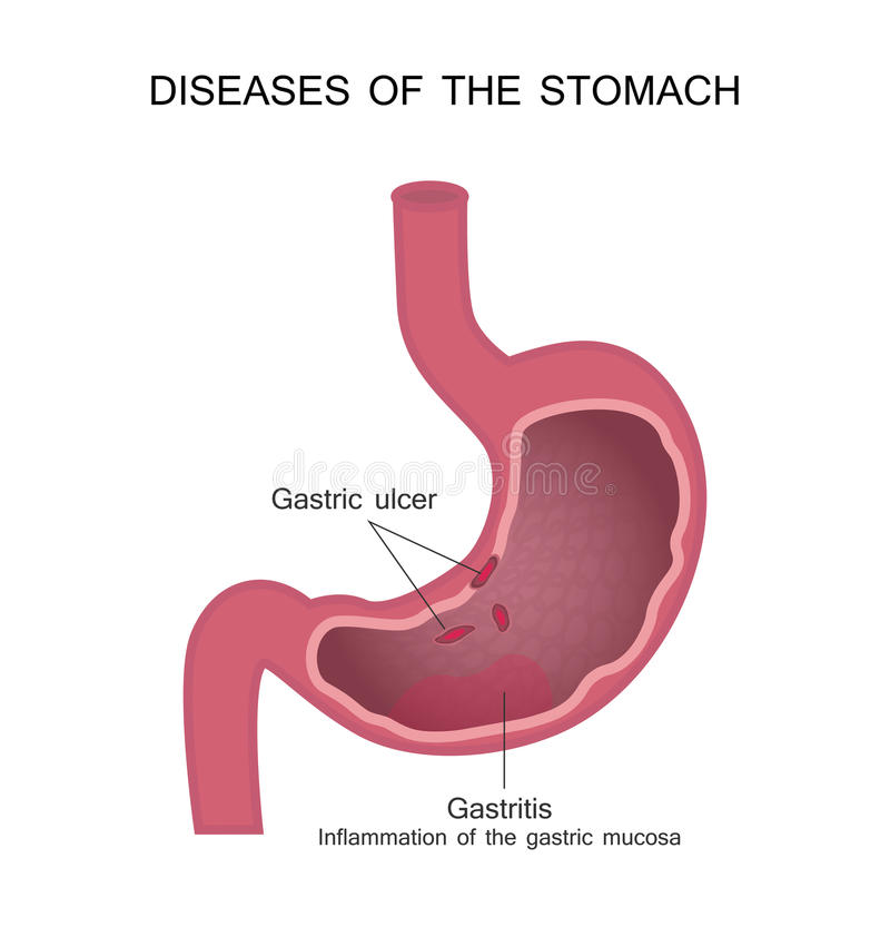 Choroby żołądek Wrzód Trawienny i Gastritis ilustracji