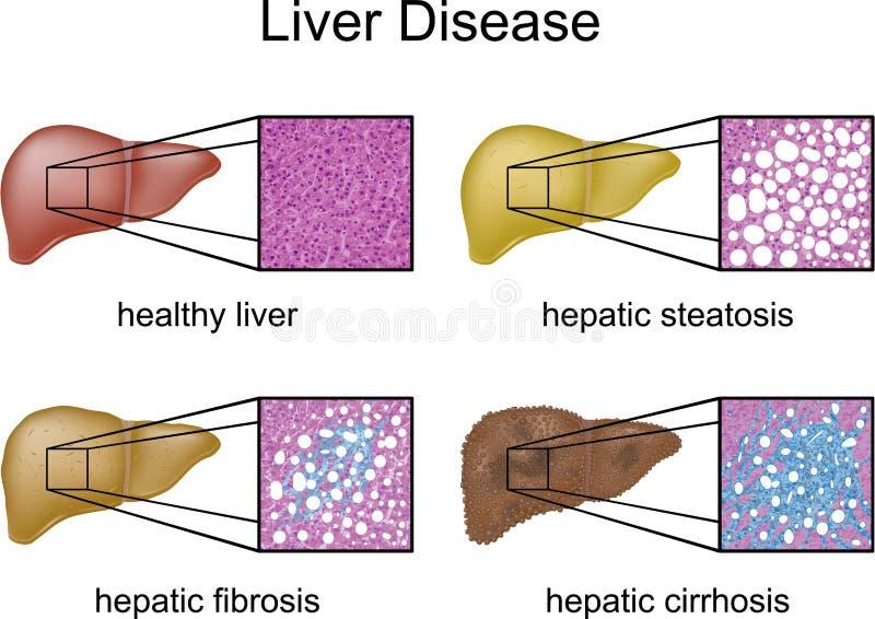 choroby wątróbka ilustracji