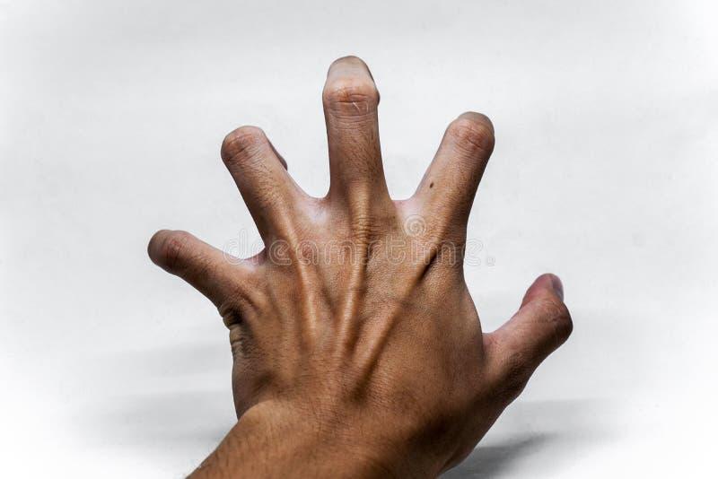 Chory ma konwulsje ręka gest zdjęcie royalty free