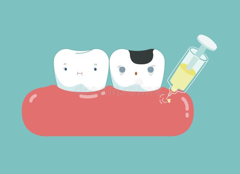 Chory ząb z traktowaniem, medyczny stomatologiczny kreskówki pojęcie obrazy stock