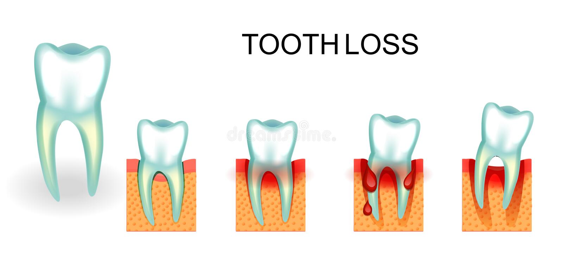 chory zdrowy ząb krwawiący dziąsła Ząb strata ilustracja wektor