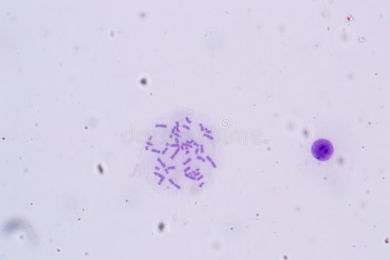 Chromosomen menschlich unter dem Mikroskop für Ausbildung lizenzfreie stockfotografie