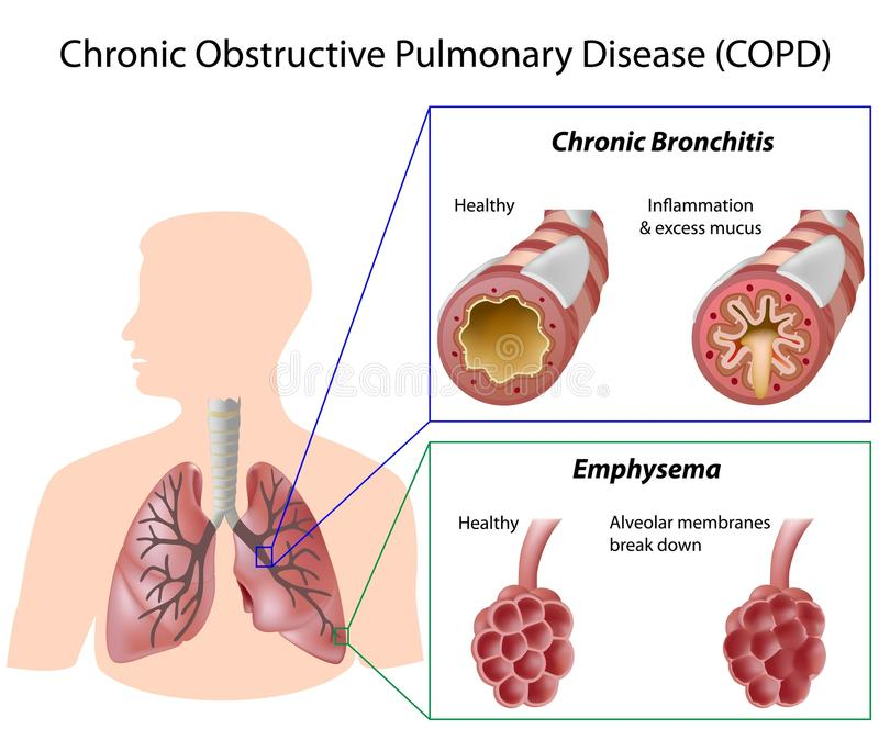 Chronic obstructive pulmonary disease stock illustration