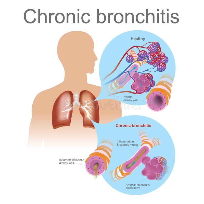 Chronische Bronchitis lizenzfreie abbildung