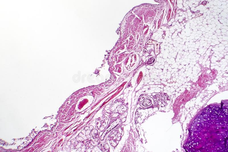 Chronische bronchitis onder microscoop royalty-vrije stock foto