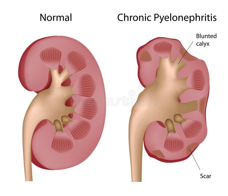 Chronische pyelonephritis van de nier stock illustratie