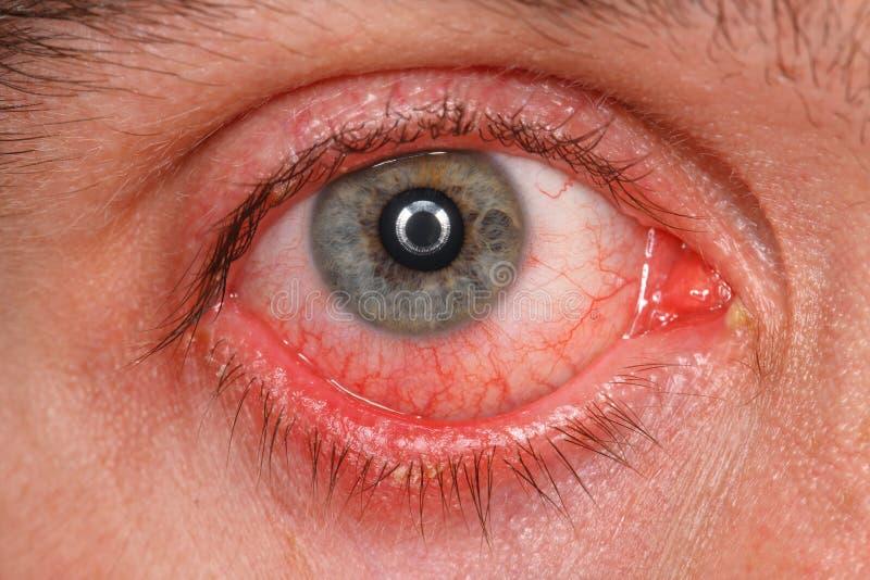 Chronisches Bindehautentzündungsauge stockbilder