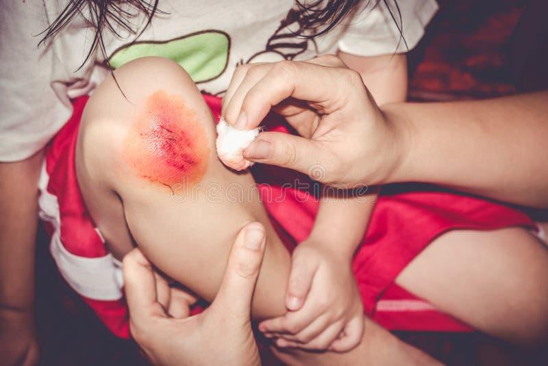 Ciérrese encima de herida en la rodilla del niño, enfermera proporciona los primeros auxilios imagenes de archivo