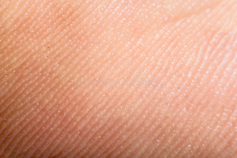Ciérrese encima de piel humana. Epidermis macra foto de archivo libre de regalías