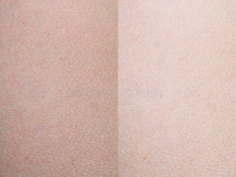 Ciérrese encima de vista de una piel humana imagen de archivo