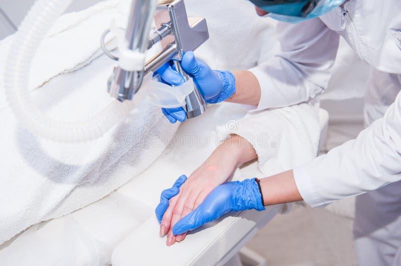 Ciérrese encima del proceso de la peladura del laser de la mano femenina Rejuvenecimiento del laser y tratamiento de la piel de l fotografía de archivo