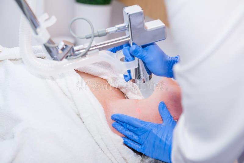Ciérrese encima del proceso de la peladura del laser Rejuvenecimiento del laser y tratamiento de la piel de la piel problemática  imagen de archivo libre de regalías