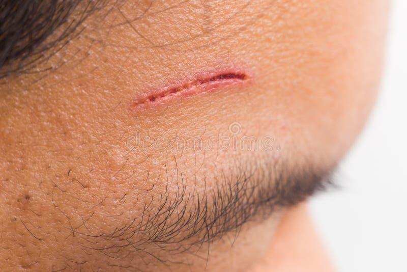 Ciérrese para arriba de herida dolorosa en la frente del corte profundo imagen de archivo