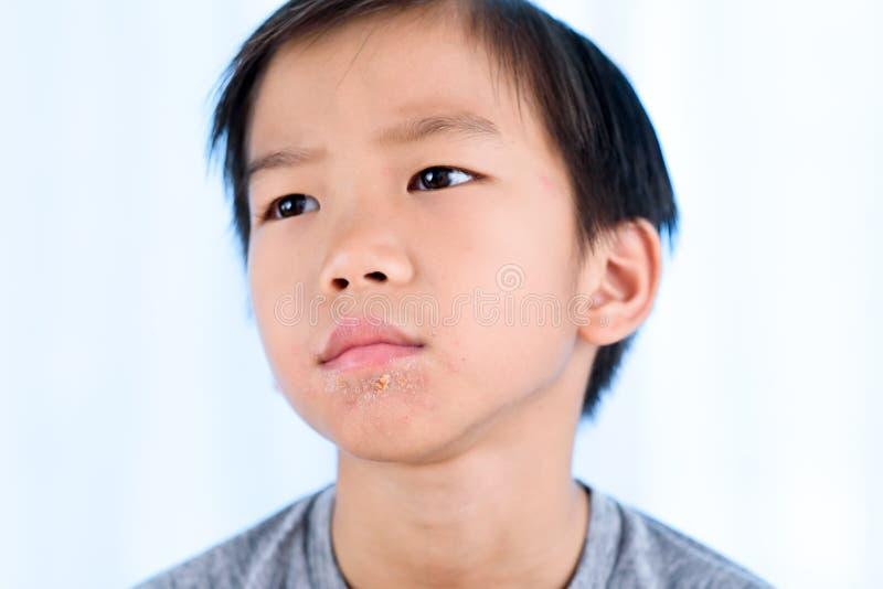 Ciérrese para arriba de los labios afectados por el herpes fotos de archivo libres de regalías