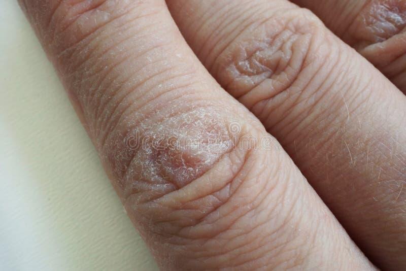 Ciérrese para arriba de manos con la piel agrietada seca foto de archivo libre de regalías