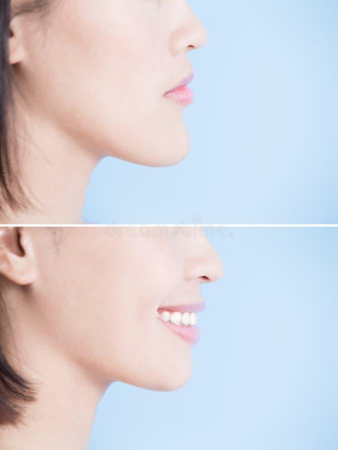 Ciérrese para arriba de mujer de la cirugía imagenes de archivo