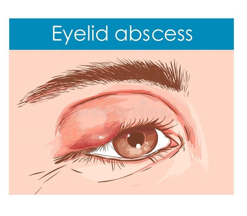 Ciérrese para arriba de un ojo con un párpado infectado libre illustration