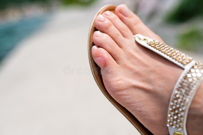 Ciérrese para arriba del finger del pie humano con una ampolla imagen de archivo