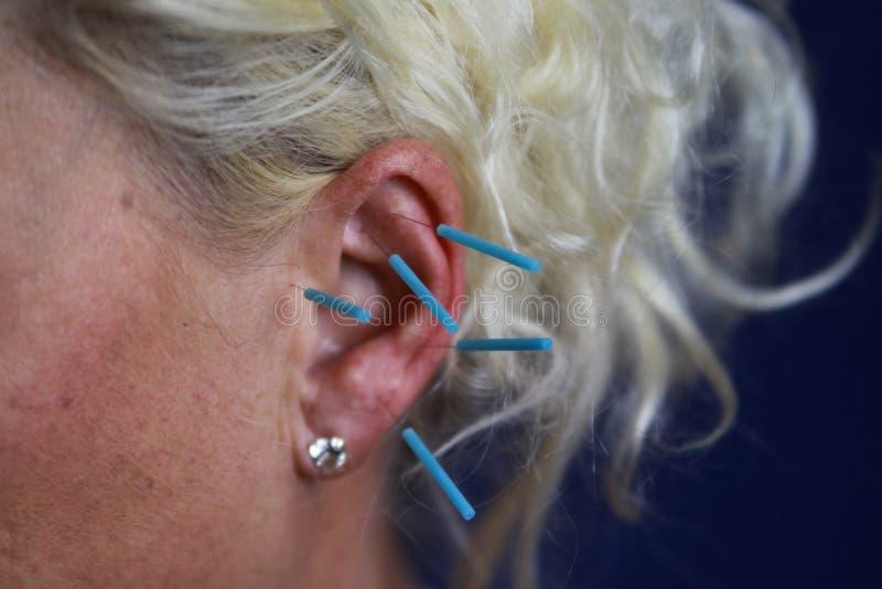 Ciérrese para arriba del oído femenino humano con las agujas azules: Acupuntura del oído como forma de medicina china alternativa fotografía de archivo