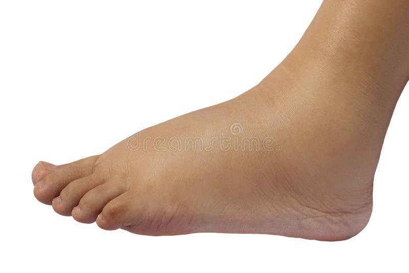 Ciérrese para arriba del pie hinchado de una mujer embarazada de 35 semanas imagen de archivo