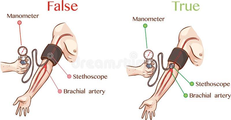Ciśnienie krwi ilustracja ilustracja wektor