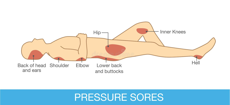Ciśnieniowy rana teren ilustracji