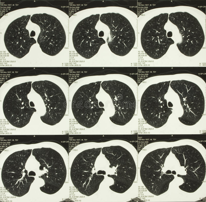 ciała klatka piersiowa obliczająca tomografia obrazy stock