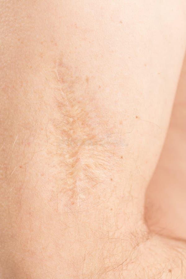 Cicatrice après opération sur le bras images stock