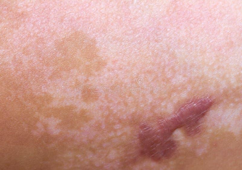 Cicatrice d'une brûlure sur la peau photos libres de droits