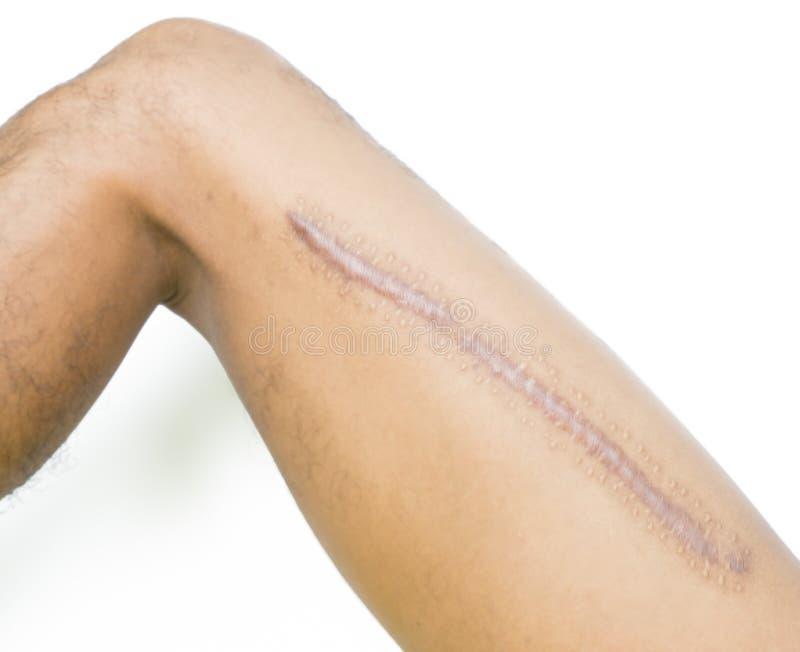 Cicatrice de keloid de plan rapproché sur la peau asiatique d'homme après la fracture de fémur, cuisse cassée sur le fond blanc photographie stock libre de droits