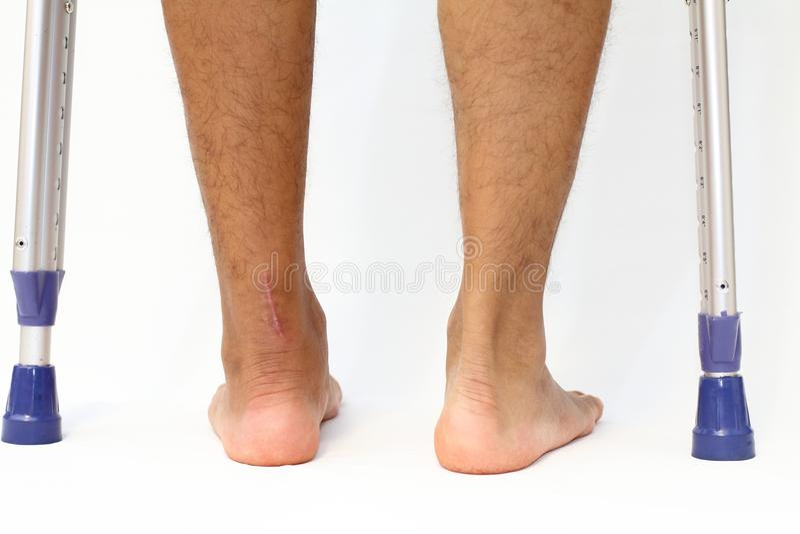 Cicatrice di operazione della rottura e dei crutchs del tendine di Achille fotografia stock libera da diritti