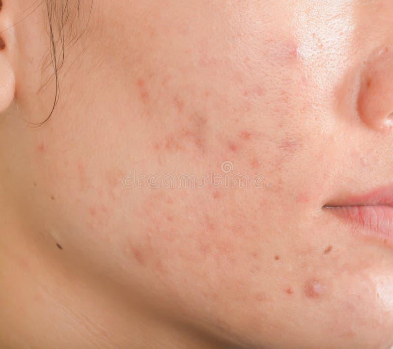 Cicatrice et anthracnoses sur le visage photos stock