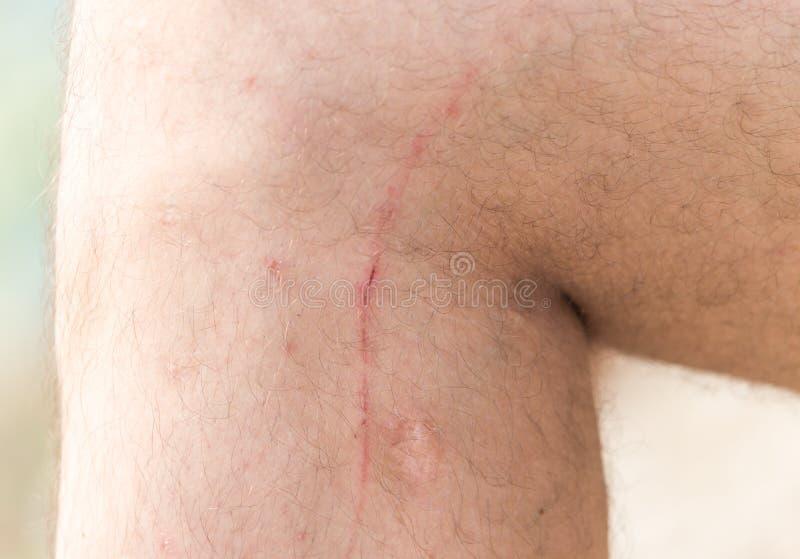 Cicatrices en su pierna imagen de archivo
