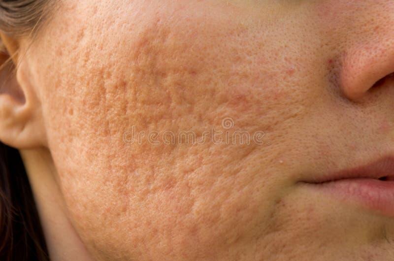 Cicatrici dell'acne fotografie stock