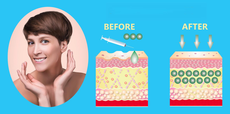 ?cido hialur?nico productos para el cuidado de la piel Rejuvenecimiento de la piel fotos de archivo libres de regalías