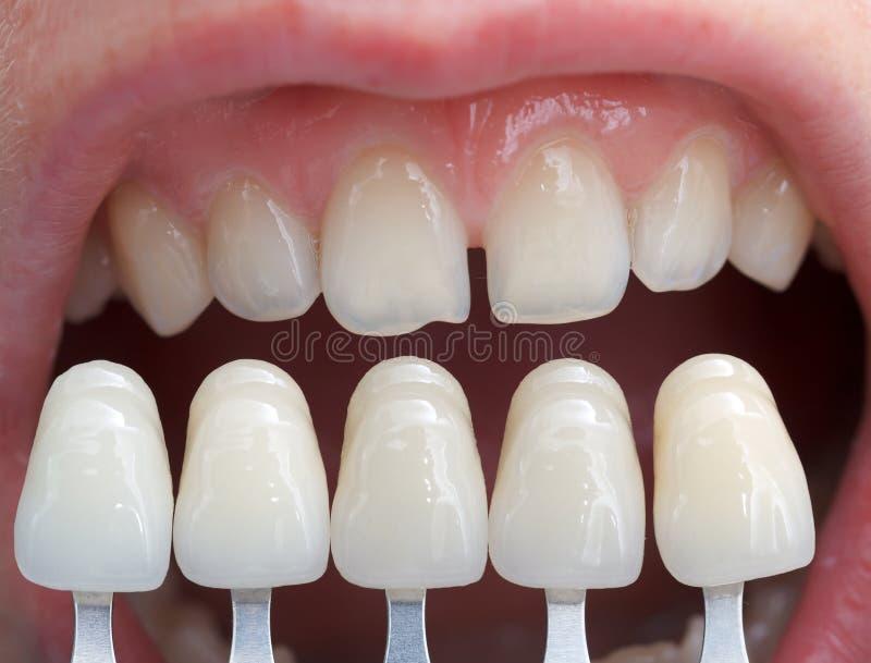 Download Cień determinacja obraz stock. Obraz złożonej z dentyści - 29439357