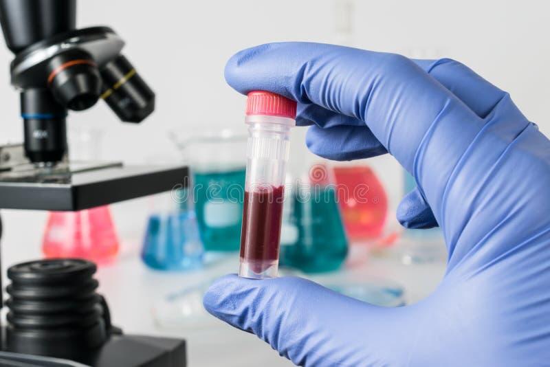 Cientista com amostra de sangue Laboratório médico foto de stock royalty free