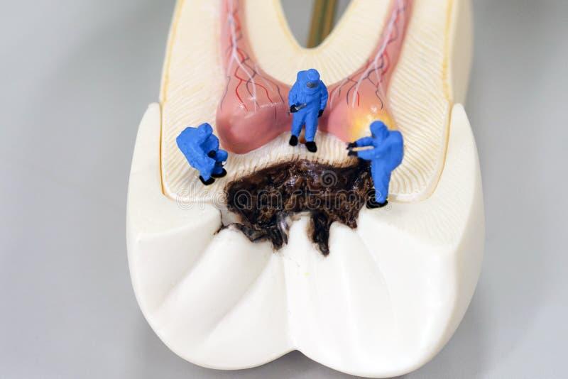 Cientista diminuto dos povos no trabalho com modelo deteriorado do dente imagens de stock