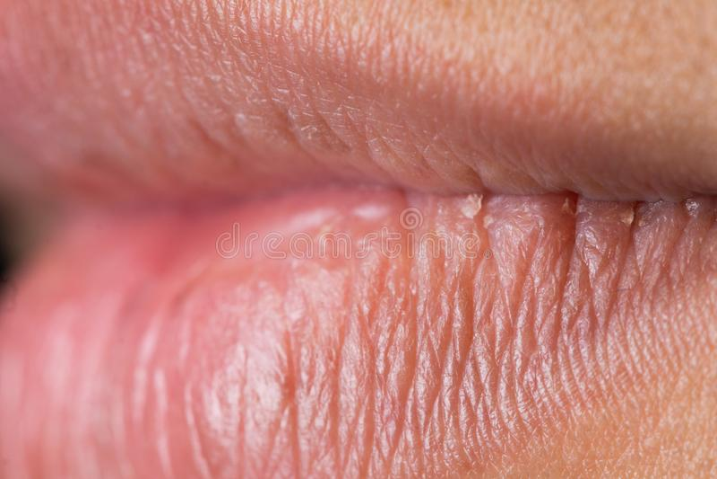 verruga en el labio superior dela boca