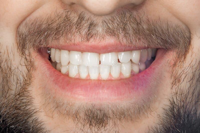 Cierre de la sonrisa del diente para arriba El concepto de higiene oral apropiada sana fotos de archivo